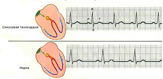 ЭКГ у взрослых: расшифровка и норма в таблице, отклонения и нарушения сердечного ритма