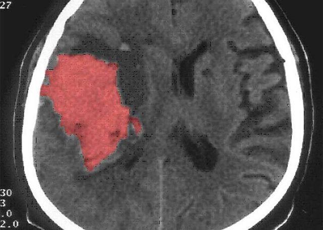 Кавернозная гемангиома: причины, симптомы и лечение