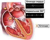 Атриовентрикулярная (АВ) блокада: причины, степени, симптомы, диагностика и лечение