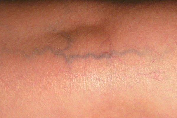 Ретикулярный сегментарный варикоз нижних конечностей: что это такое, фото, лечение
