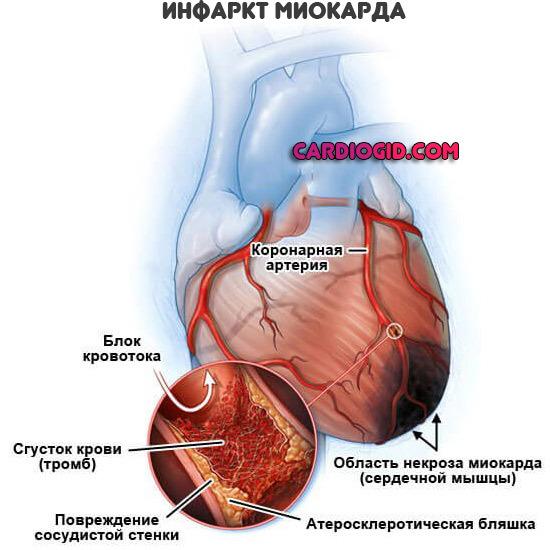 Первая помощь при инфаркте миокарда: алгоритм действий до приезда скорой помощи, что делать в домашних условиях