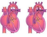 Открытый артериальный проток (ОАП): симптомы, причины, диагностика и лечение