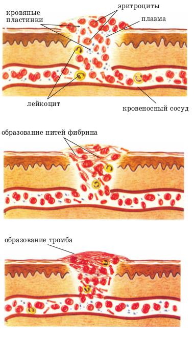 Причины медленного сворачивания крови при порезах