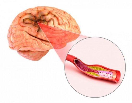 Лечим атеросклероз сосудов головного мозга соками