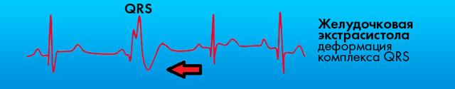 Синусовый ритм сердца: заключение и расшифровка ЭКГ, норма у взрослого и ребёнка, постановка диагноза