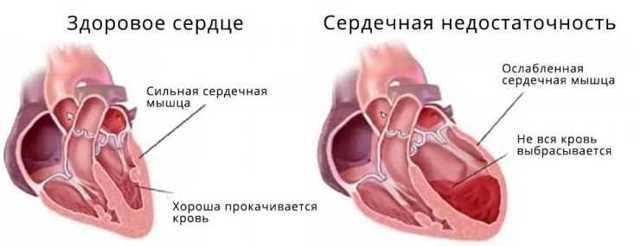 Трикуспидальная регургитация: что это такое, степени заболевания, причины, симптомы и лечение