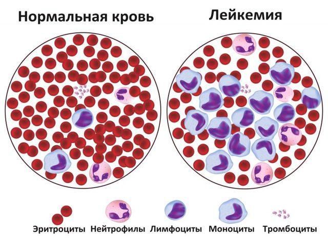 Лейкоз у взрослых: причины развития и основные симптомы болезни, виды лейкемии, диагностика и методы лечения