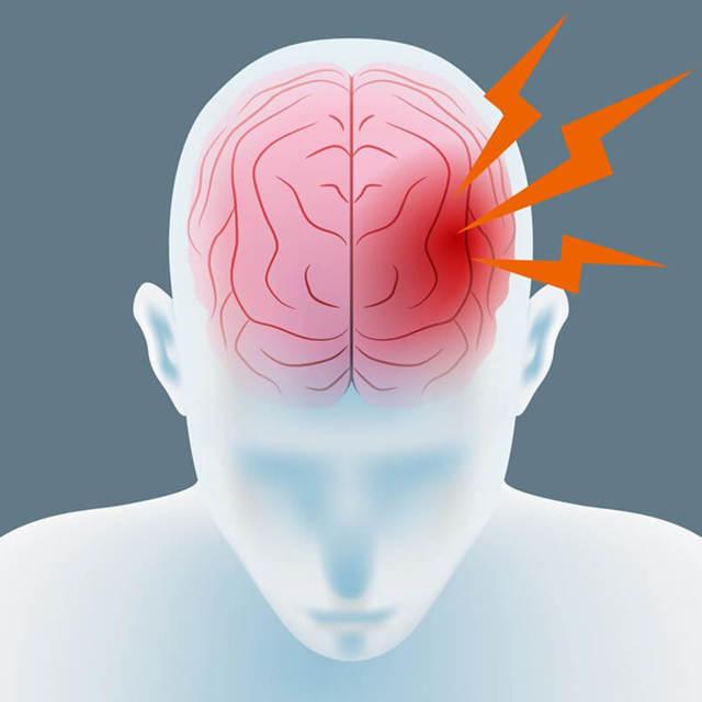Первые признаки аневризмы сосуда головного мозга