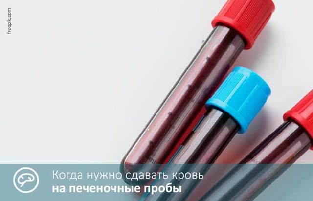 Показания к определению печеночных проб в крови