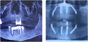 Можно ли сделать протезирование зубов за один день: технология all on 4, отзывы