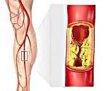 Облитерирующий атеросклероз сосудов нижних конечностей: лечение, симптомы и причины