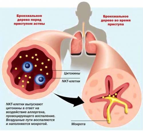 Лейкемоидная реакция: описание, причины развития, типы и особенности лечения