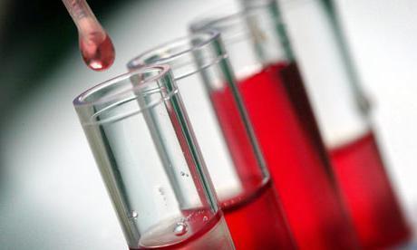 Первая отрицательная группа крови: характеристика, редкая или нет