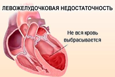 Порок сердца: причины развития и симптомы, наследственная и приобретенная формы, лечение и последствия