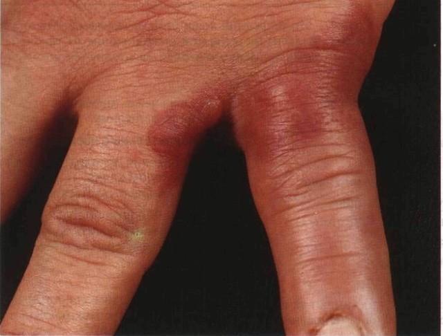 Болезнь Шенлейна Геноха: этиология, патогенез, код по мкб, лечение и клинические рекомендации