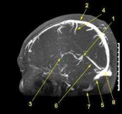 Ангиография сосудов головного мозга: что это такое, сущность метода, цена