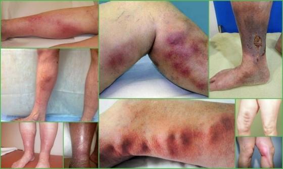 Тромбоэмболия нижних конечностей: симптомы, фото и лечение