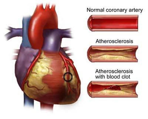 Аортокоронарное шунтирование: показания к АКШ, описание операции на сосудах сердца