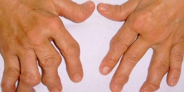 Анемия: симптомы и лечение у взрослых, что это такое