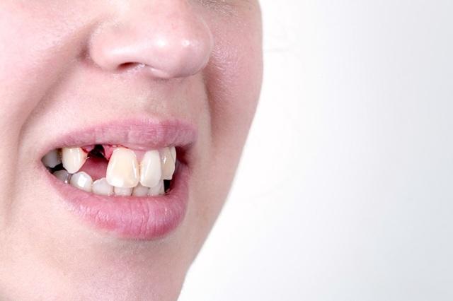 Кровотечение после удаления зуба: причины, как остановить и сколько идет кровь в норме