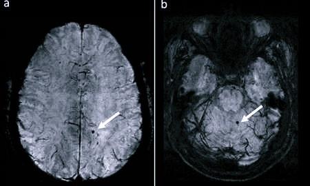 Склероз сосудов головного мозга: что это такое, виды заболевания и их особенности, симптомы, признаки и лечение