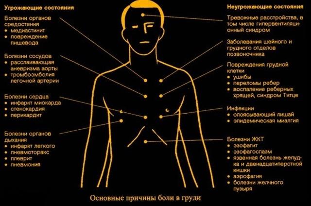 Боль в грудине слева: причины, симптомы, лечение