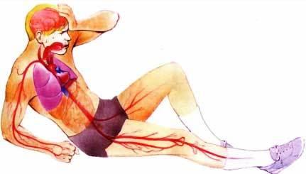 Геморрагический шок: неотложная помощь, классификация степеней тяжести, причины, симптомы
