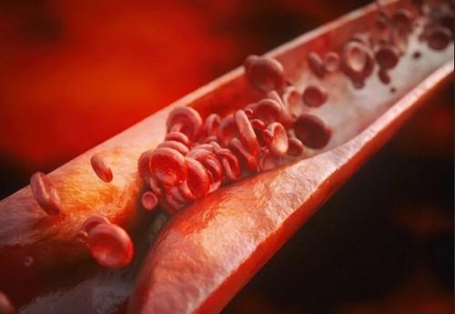 Какие продукты могут вызвать формирование тромбов: 7 наиболее опасных
