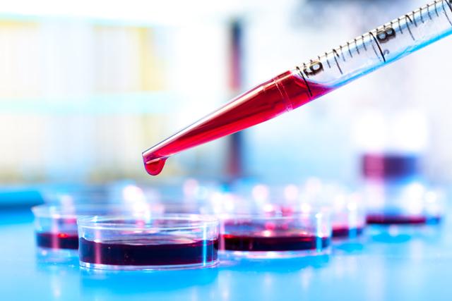 Густая кровь: причины и лечение у женщин, симптомы и лечение