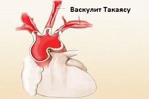Болезнь Такаясу: причины, симптомы, диагностика, лечение