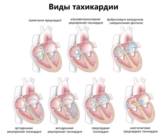 Сильное сердцебиение: причины, что делать, препараты, первая помощь