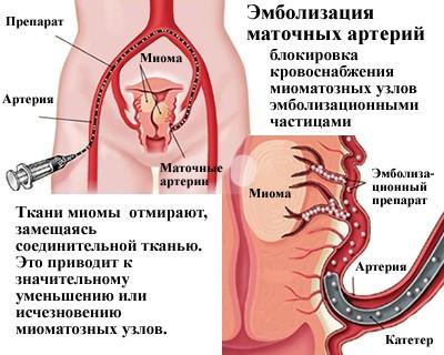 Эмболизация маточных артерий при миоме матки (ЭМА): отзывы пациентов и противопоказания к проведению процедуры , отзывы, стоимость