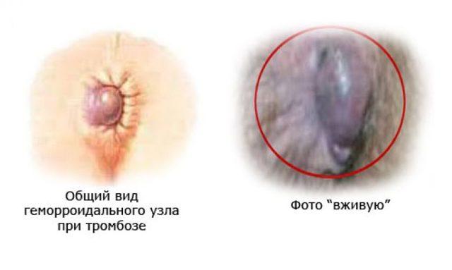 Последствия тромбоза геморроидальных узлов