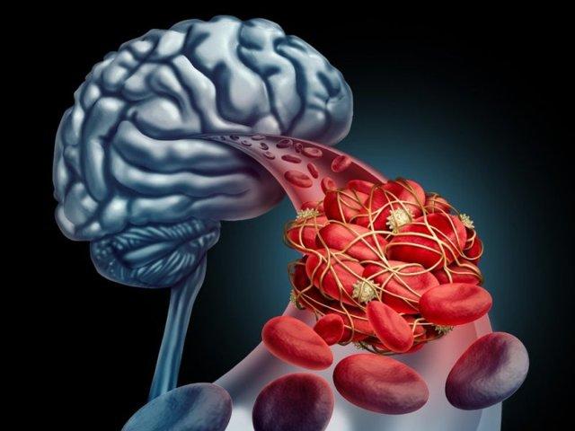Тромболизис: что это такое, виды, показания и противопоказания