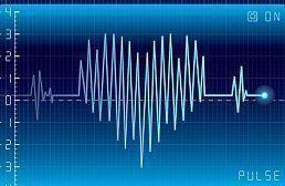 Инсульт - лечение и восстановление: признаки, симптомы, последствия и профилактика