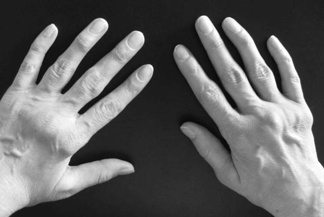Базофилы повышены: причины высокого и низкого содержания в крови у мужчин и женщин, показатель в норме