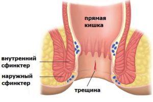 Кал с кровью у женщин и мужчин: что это значит, причины и лечение, что делать