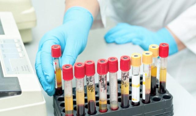 Ретикулоциты: показания к анализу, норма, причины повышенного и пониженного содержания в крови