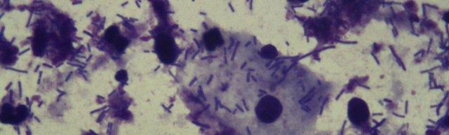 Кокки в мазке у женщин: описание и разновидности, причины возникновения инфекции, диагностика и лечение