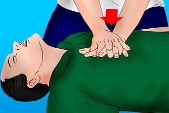 Прекардиальный удар: куда наносят при оказании первой помощи и суть метода, запрещен или нет