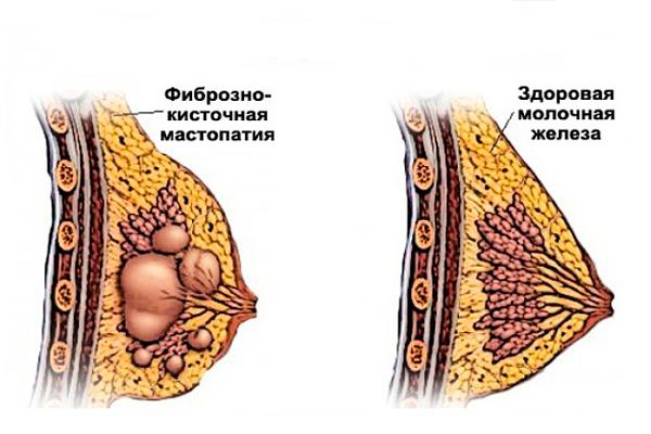 Пролактин повышен у женщины: причины, норма у женщин по возрасту, таблица, когда сдавать на какой день цикла