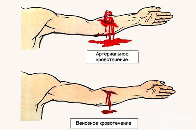 Кровотечение: какие бывают виды и признаки, как распознать типы излияний, методы лечения