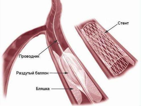 Окклюзия артерий и других сосудов: причины развития, симптомы и диагностика, методы лечения субокклюзии