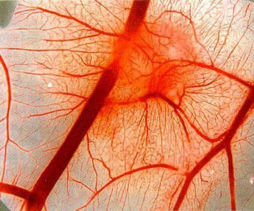 Болезнь Рандю-Ослера-Вебера: лечение и симптомы