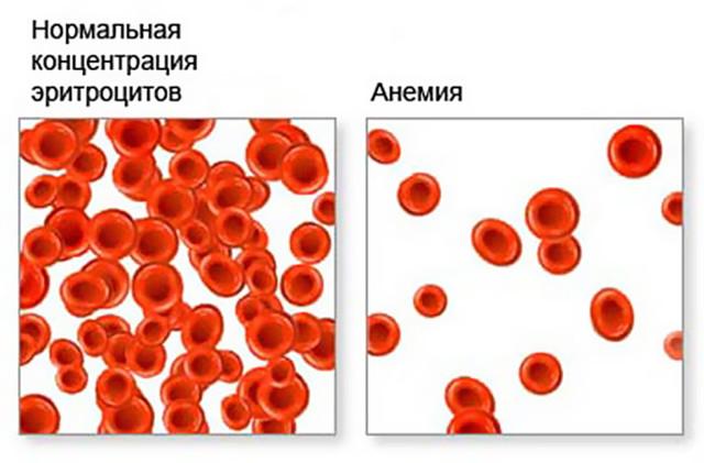 Гликированный гемоглобин: что показывает, норма по возрасту, проведение анализа крови