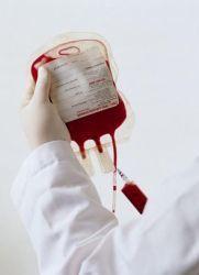 Уфо крови: что это такое, показания и противопоказания, уход после проведения, цена, отзывы