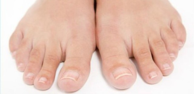 Гангрена нижних конечностей: причины, симптомы, диагностика, лечение и признаки начальной стадии (с фото)