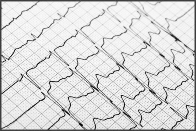 Наджелудочковая экстрасистолия: что это такое, симптомы, виды,диагностика, лечение