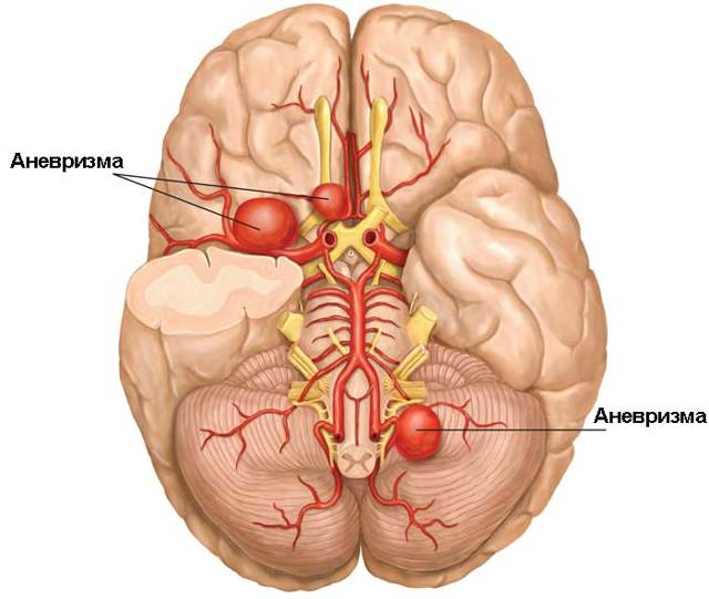 Аневризма: причины поражения сосудов головного мозга, признаки и симптомы нарушений, диагностика и лечение