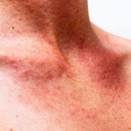 Васкулит: симптомы и лечение, что это такое